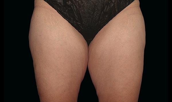 inner-thighs-before
